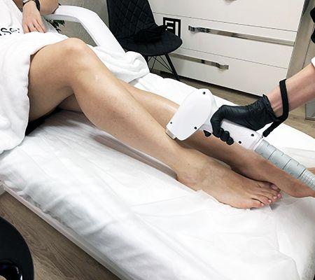 Эпиляция ног лазером.